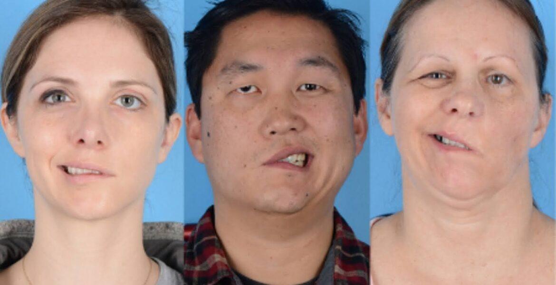 The Lancet: Вакцина CoronаVac повышает риск временного паралича лицевого нерва